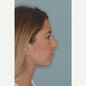 18-24 year old woman treated with Rhinoplasty after 3288055