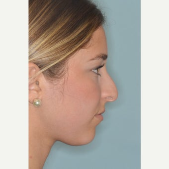 18-24 year old woman treated with Rhinoplasty before 3288055