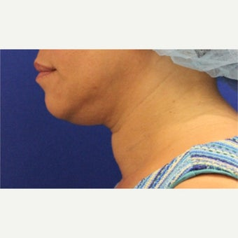 47 year old woman treated with Ultherapy