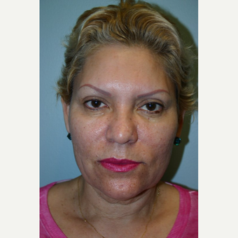 52 year old woman treated with Facelift before 3667726