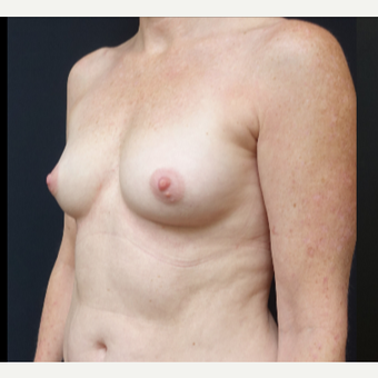 35-44 year old woman treated with Mentor Breast Implants before 3529827
