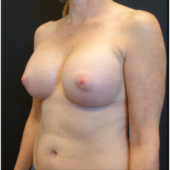 35-44 year old woman treated with Mentor Breast Implants after 3529827