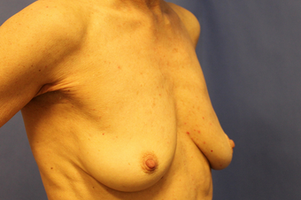 Breast augmentation with Mentor MemoryShape implants 1373578