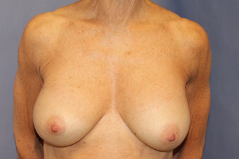 Breast augmentation with Mentor MemoryShape implants after 1373578