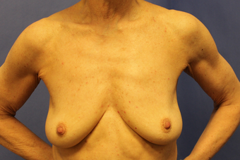 Breast augmentation with Mentor MemoryShape implants before 1373578