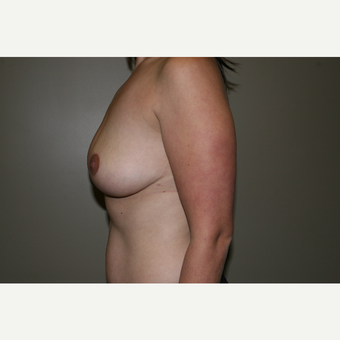 25-34 year old woman treated with Breast Lift after 3769682