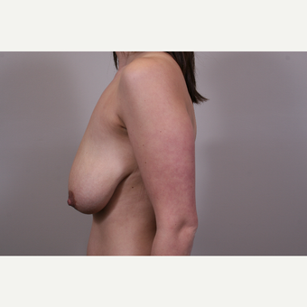 25-34 year old woman treated with Breast Lift before 3769682