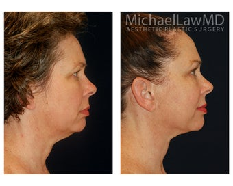 Neck Lift before 1325336