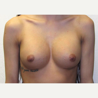 19 year-old woman treated with Moderate Profile, Silicone Gel Breast Implants after 3358524