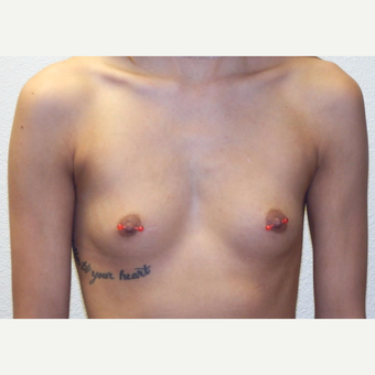 19 year-old woman treated with Moderate Profile, Silicone Gel Breast Implants before 3358524