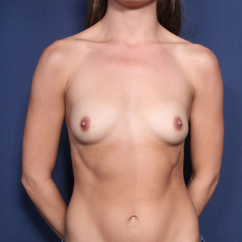 25-34 year old woman treated with Breast Augmentation (view 1 of 2) before 3213958