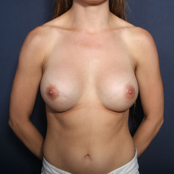25-34 year old woman treated with Breast Augmentation (view 1 of 2) after 3213958