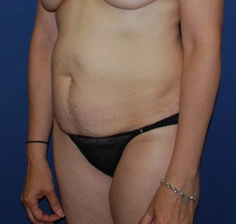 45-54 year old woman treated with Tummy Tuck before 3294091