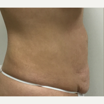 35-44 year old woman treated with Tummy Tuck before 3493701