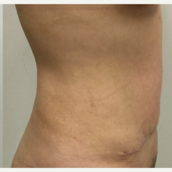 35-44 year old woman treated with Tummy Tuck after 3493701
