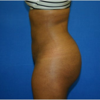 26 year old woman treated with Brazilian Butt Lift (BBL) after 2397573