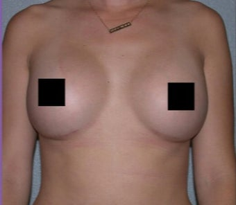 23 year old woman treated with Breast Augmentation after 3282308