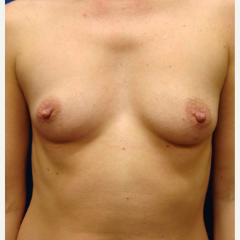 25-34 year old woman treated with Breast Implants before 3670044