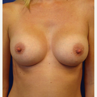 25-34 year old woman treated with Breast Implants after 3670044