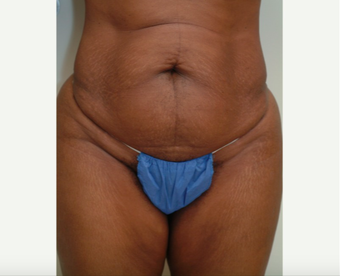 35-44 year old woman treated with Tummy Tuck before 2454204