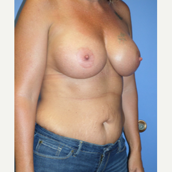 35-44 year old woman treated with Breast Implants after 3370255
