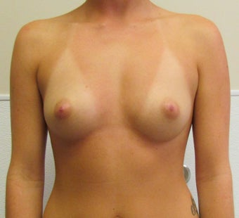 Breast Augmentation 21 year old female before 1139226