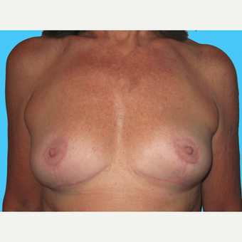 Breast Implant Removal after 3809874