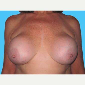 Breast Implant Removal before 3809874