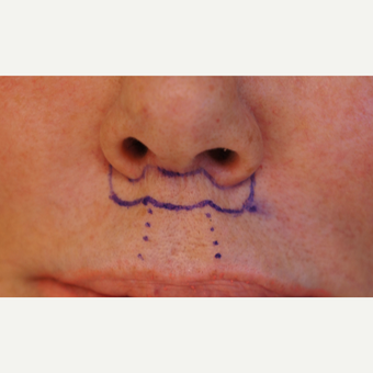 65-74 year old woman treated with Lip Lift - immediate suture line evaluation and 6 weeks after