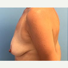 Breast Augmentation before 3278996