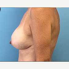 Breast Augmentation after 3278996