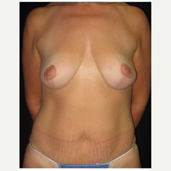 45-54 year old woman treated with Body Lift after 3175745