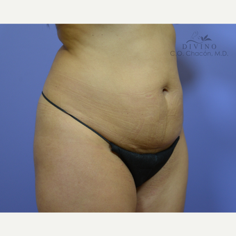 25-34 year old woman treated with Tummy Tuck before 3422088