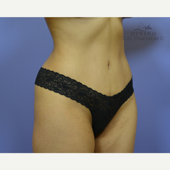 25-34 year old woman treated with Tummy Tuck after 3422088
