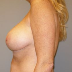 45-54 year old woman treated with Breast Reduction before 3280687