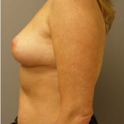 45-54 year old woman treated with Breast Reduction after 3280687