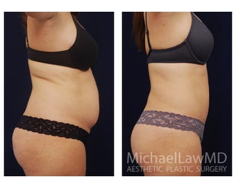 Liposuction before 1284256