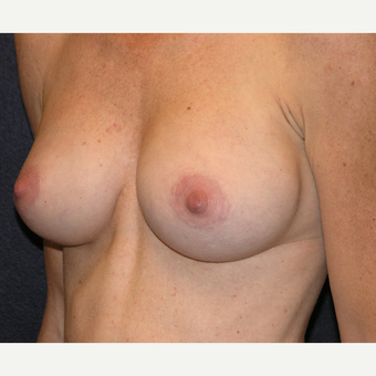 35-44 year old woman treated with Breast Implants after 3454961