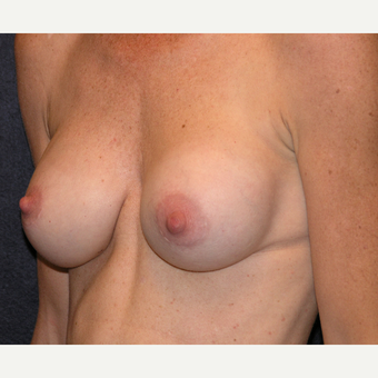 35-44 year old woman treated with Breast Implants before 3454961