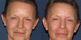 Fraxel Dual Laser Before and After  before 1251025