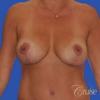 37 year old woman treated with an anchor Breast Lift after 3641105