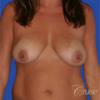 37 year old woman treated with an anchor Breast Lift before 3641105