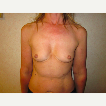 25-34 year old woman treated with Breast Augmentation before 3697430