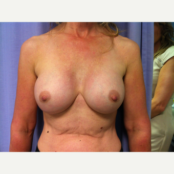 25-34 year old woman treated with Breast Augmentation after 3697430