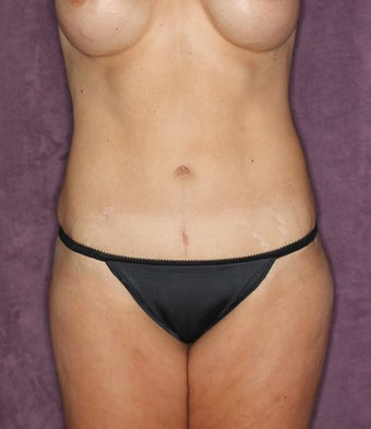 Tummy tuck after 517000