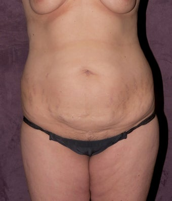 Tummy tuck before 517000