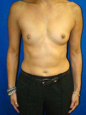 Breast Augmentation, Breast Enhancement, Silicone gel Implants before 1361160