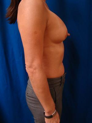 Breast Augmentation, Breast Enhancement, Silicone gel Implants 1361160