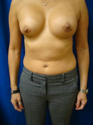 Breast Augmentation, Breast Enhancement, Silicone gel Implants after 1361160