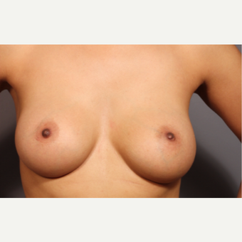 35-44 year old woman treated with Breast Augmentation after 3319806